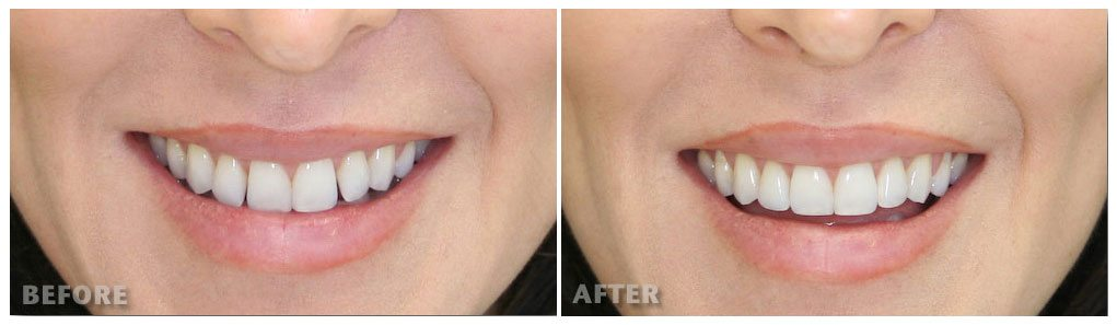 Dental Bonding Before & After