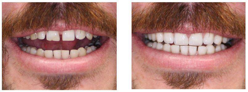 Dental Bonding Before & After