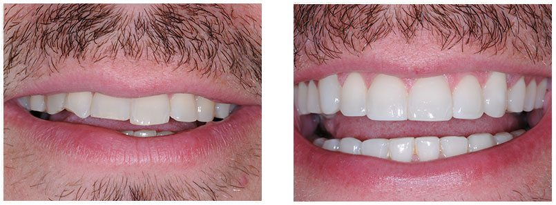 Composite Veneers Before & After