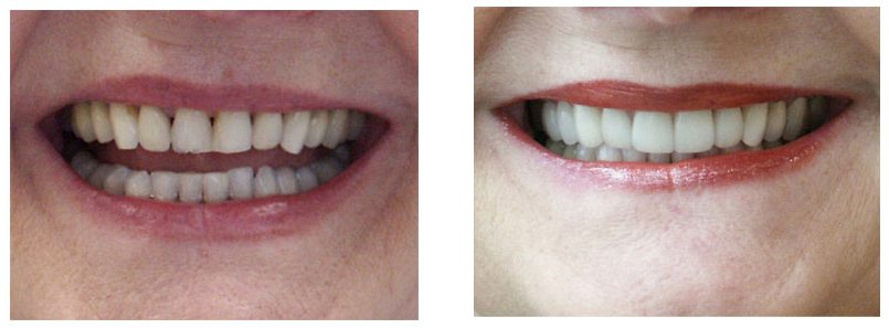 Dental Crowns Before & After