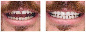 dental-bonding-before-after-300x111
